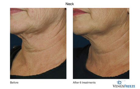 Images showing the results both before and after visiting Celebrity Medical Spa. As you can see there is a distinct differnce after several treatments. Beaverton, Oregon 97007.