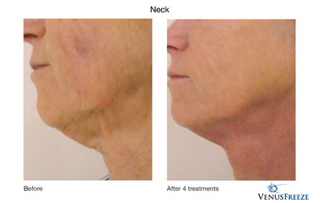 Wrinkle Reduction & Skin Tightening done by our friendly staff at Celebrity Spa of Beaverton, Oregon 97007