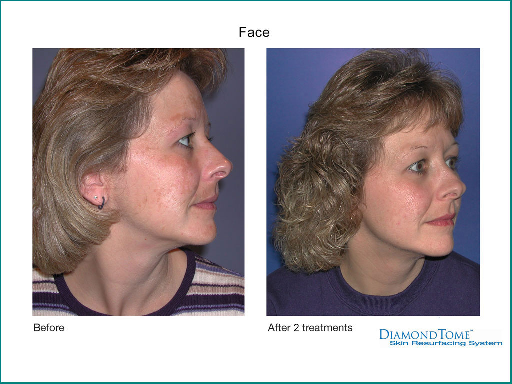 Skin Rejuvenation done by our friendly staff at Celebrity Spa of Beaverton, Oregon 97007