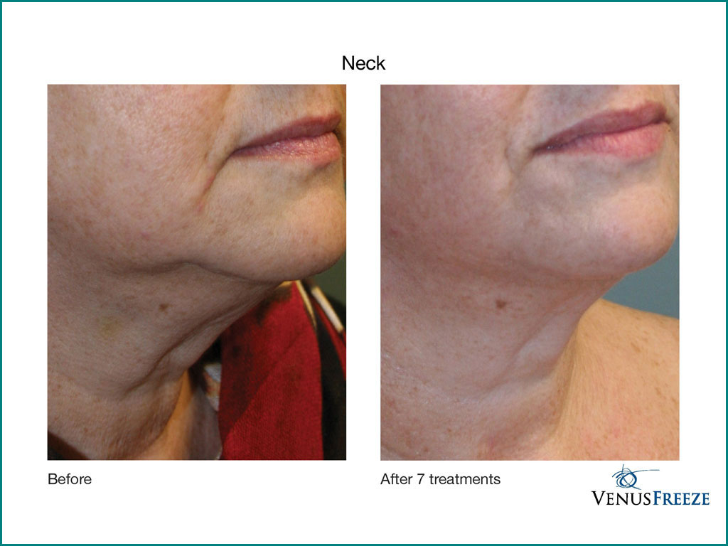 Celebrity Medical Spa of Beaverton, Oregon - Before & After Image of Skin Tightening by the Venus Freeze