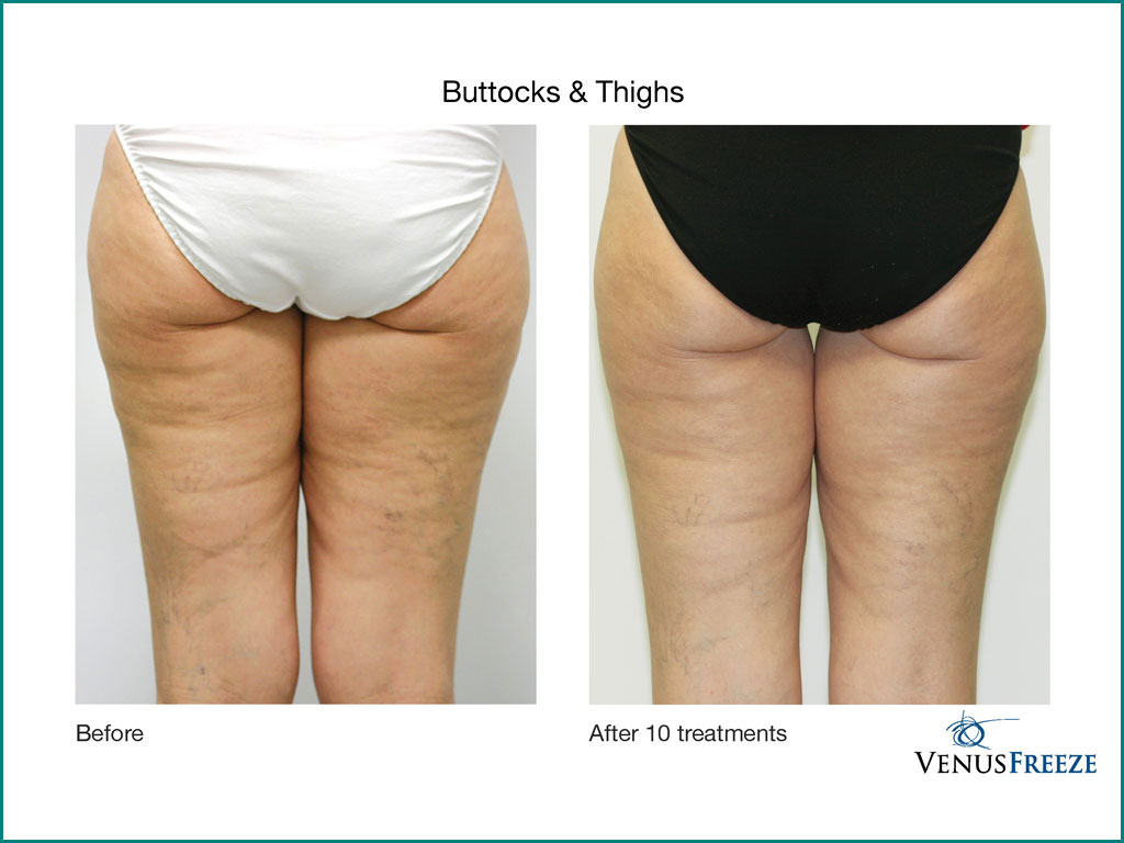 Body Contouring & Cellulite Reduction - done by our friendly staff at Celebrity Spa of Beaverton, Oregon 97007