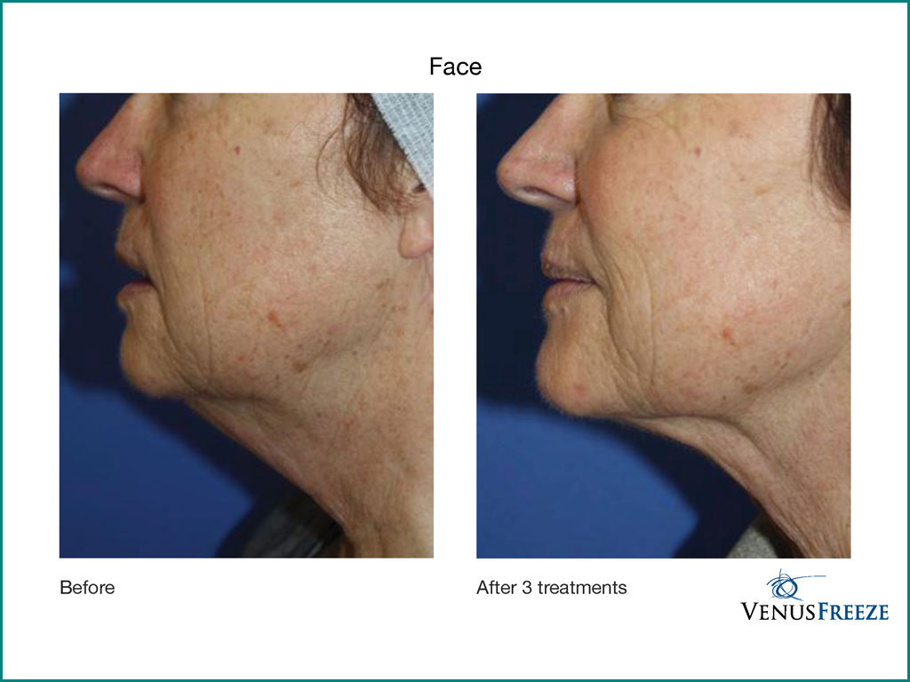 Skin Tightening - done by our friendly staff at Celebrity Spa of Beaverton, Oregon 97007