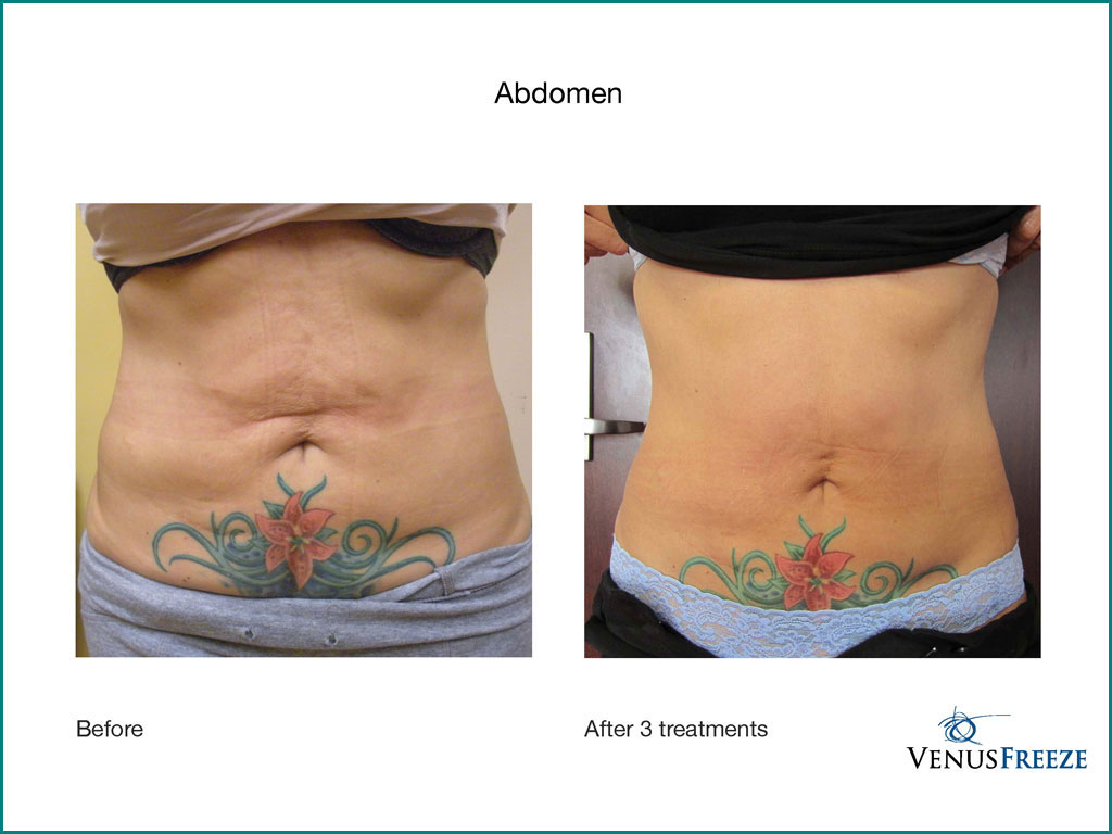 Body Contouring & Skin Tightening - done by our friendly staff at Celebrity Spa of Beaverton, Oregon 97007