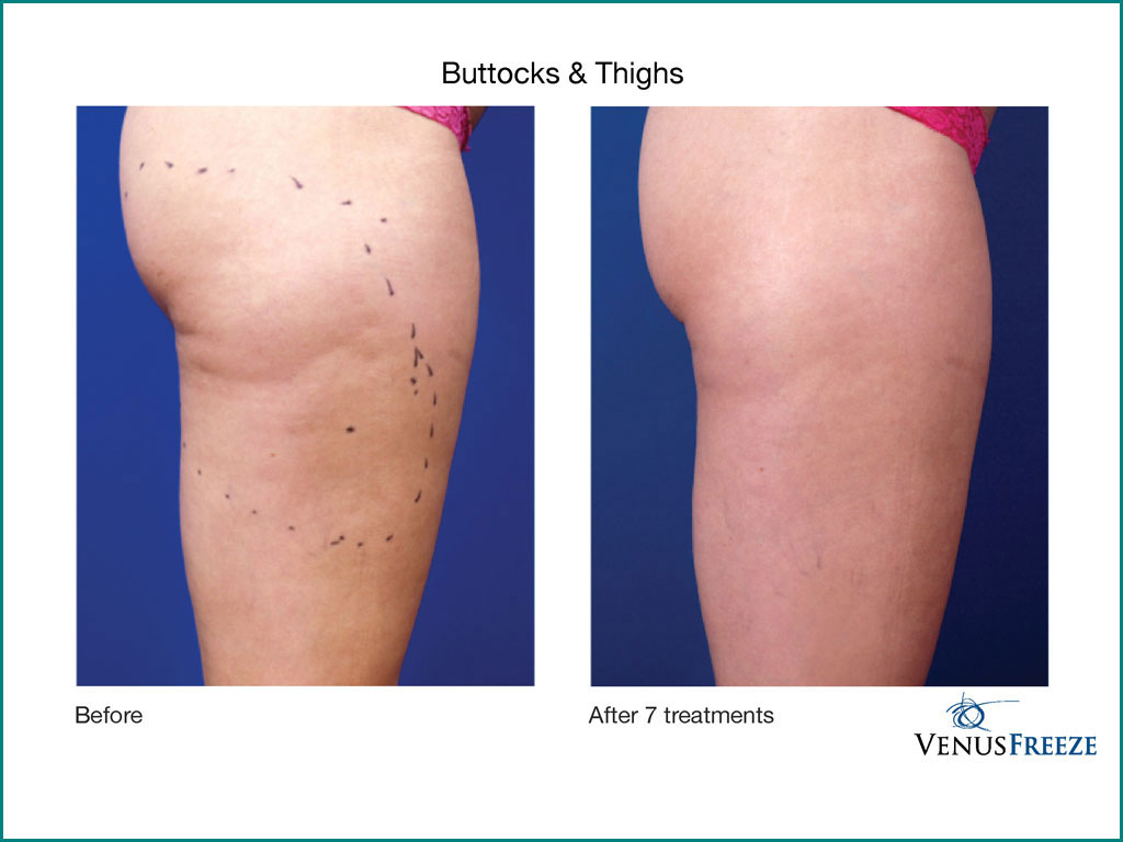 Skin Tightening & Cellulite Reduction - done by our friendly staff at Celebrity Spa of Beaverton, Oregon 97007